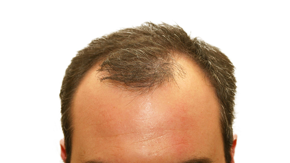 Dermatologist Dr Lynette Low Shares More About Hair Loss and Grey Hair